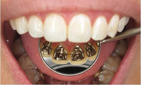 Dental braces wearing in lingual side