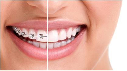 NEW GENERATION OF ORTHODONTIC TREATMENT WITHOUT DENTAL BRACES – INVISALIGN